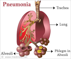 Quiz on Pneumonia (Advance)