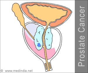 Quiz on Prostate Cancer (Advance)
