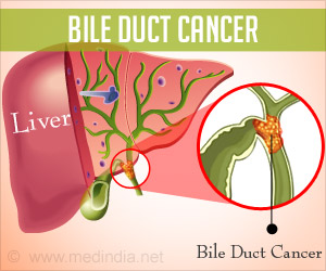 Test Your Knowledge on Bile Duct Cancer