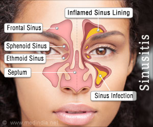 Test Your Knowledge on Sinusitis