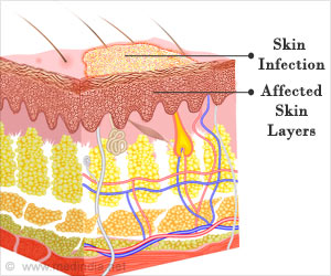 Test Your Knowledge on Skin Infections