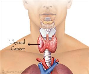 Quiz on Thyroid Cancer (Advance)