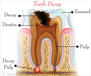 Test your Knowledge on Tooth Decay