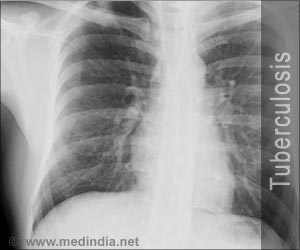 Quiz on Tuberculosis (Advance)