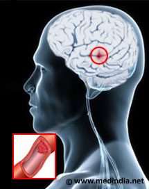 Quiz on Stroke
