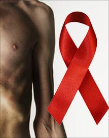 how to tell if you have hiv or std