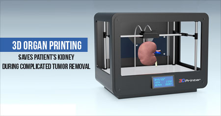 3D Organ Printing Saves Patient�s Kidney During Complicated Tumor Removal