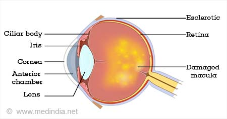 Age Related Macular Degeneration (AMD)