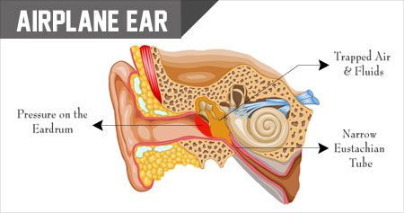 Airplane Ear / Ear Barotrauma