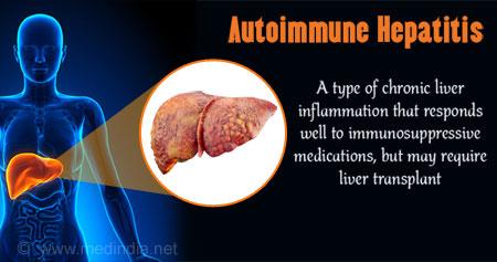 autoimmune hepatitis essay