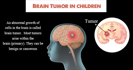 Brain Tumor in Children
