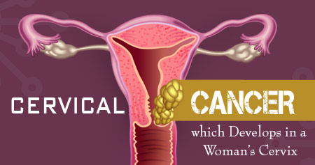 Cervical Cancer - Infographics