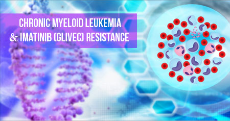 Imatinib (Glivec) Resistance in Chronic Myeloid Leukemia Can be Now Detected Early