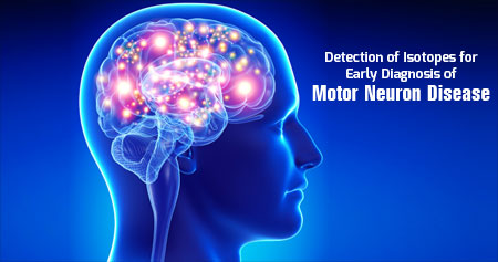 Motor Neuron Disease - Using Isotope Gives New Hope for Early Diagnosis