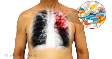 Drug-induced Pulmonary Diseases