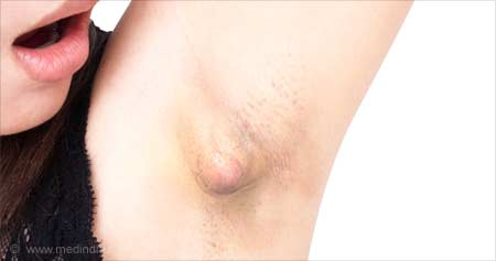 Home Remedies for Armpit Lumps