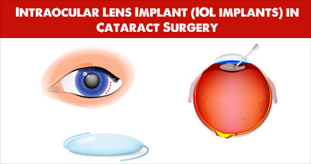 Intraocular Lens Implant in Cataract Surgery