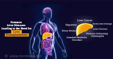 Common Types of Liver diseases leading to Liver Transplantation