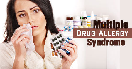 Multiple Drug Allergy Syndrome / Multiple Drug Hypersensitivity