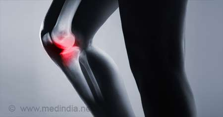 Osteolysis