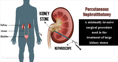 Percutaneous Nephrolithotomy (PCNL)