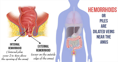 Home Remedies for Piles / Hemorrhoids