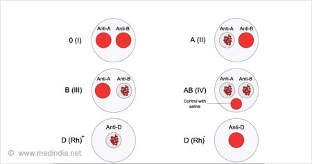 Test Your Knowledge on Blood Groups