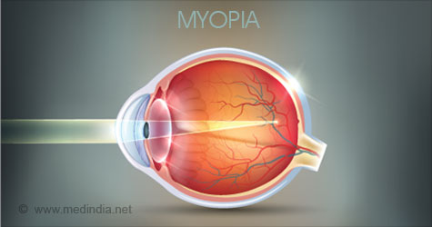 Test Your Knowledge on Myopia