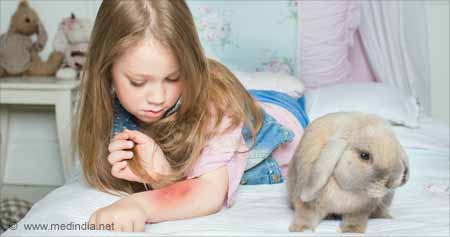 Test Your Knowledge on Tularemia / Rabbit Fever