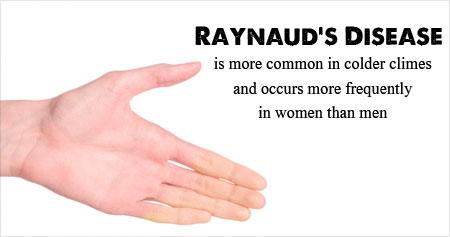 Raynaud's