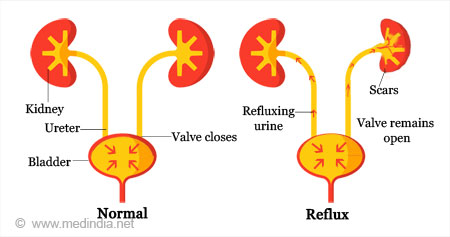 Vesicoureteric Reflux and Reflux Nephropathy