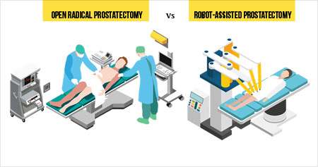 Success of Radical Prostatectomy - Be it Open or Robotic Depends on Experience of Surgeon