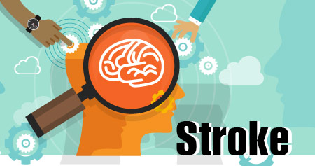 Stroke (Brain Attack) - Infographic