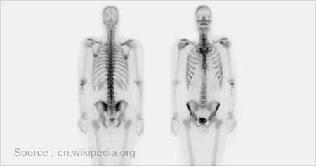 Radioisotope Scan