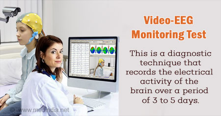 Video-EEG Monitoring Test