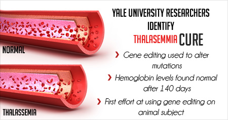 Yale University Researchers Edit a Genetic Cure for Thalassemia