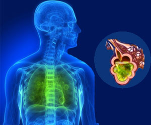 Complete Recovery After of Acute Respiratory Distress Syndrome (ARDS)  May be Rare