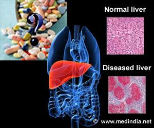 N-Acetylcysteine Does Not Improve Survival in Prednisolone-treated Severe Alcoholic Hepatitis