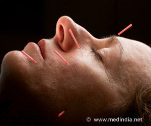 Can Acupuncture Cure Hot Flushes in Menopausal Women?
