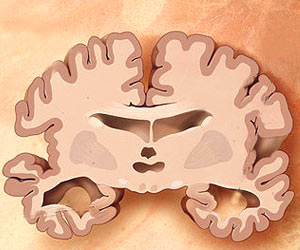 Mastinib as Add-on Treatment Improves Patients With Alzheimer�s Disease