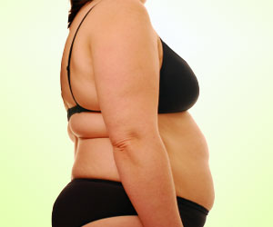 Infectobesity: Obesity Due to Viral Infection