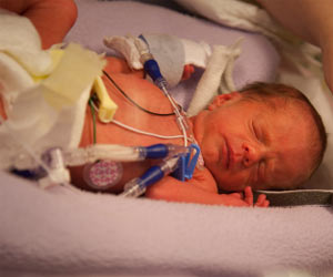 Low Birth Weight Babies Suffer Significant Health Compromise