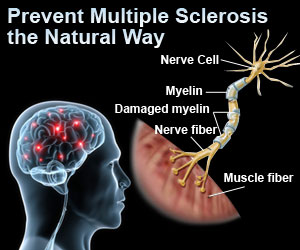 Prevent Multiple Sclerosis the Natural Way