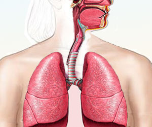 Sirolimus Effective in Treatment of a Rare Type of Lung Cancer (LAM)