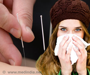 Acupuncture May Help Relieve Seasonal Allergies: Study
