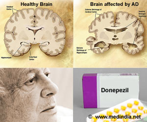 Donepezil may be Useful in Moderate-to-Severe Alzheimer's