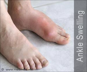 Leg and Foot Swelling During Travel - The Cause and Solution