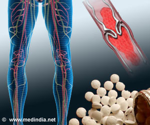 Recurrence of Venous Thromboembolism can be Checked By Aspirin