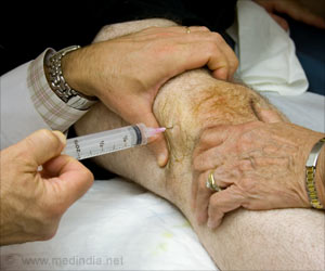 Bioactive Injectable Gel for Osteoarthritis of the Knee