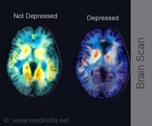 PET Scan of the Brain may Predict Treatment Outcome in Depression